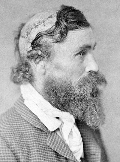 PHOTO: Robert McGee with scalping scars
