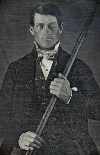 PHOTO: Phineas Gage